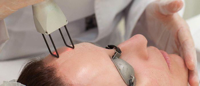Tratamento de cicatrizes da acne com laser