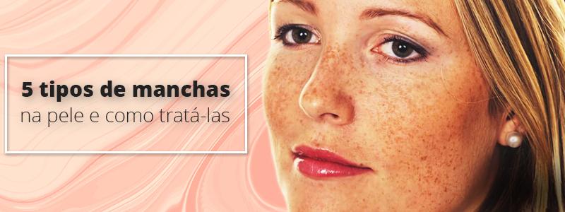 5 tipos de manchas na pele e como tratá-las: